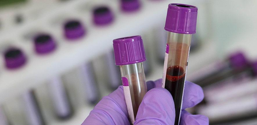 Simple blood test can predict which women will have serious pregnancy complications